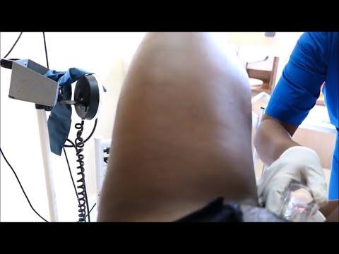 live-pap-smear-procedure-at-agha-khan-hospital