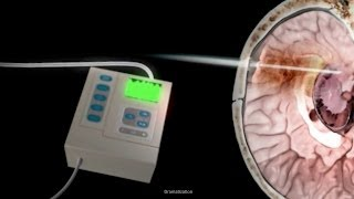 What is Intracranial Pressure?