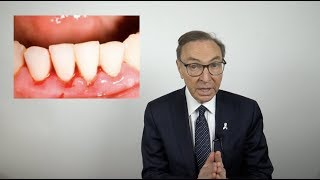 How to Treat Bleeding Gums at Home (2018)