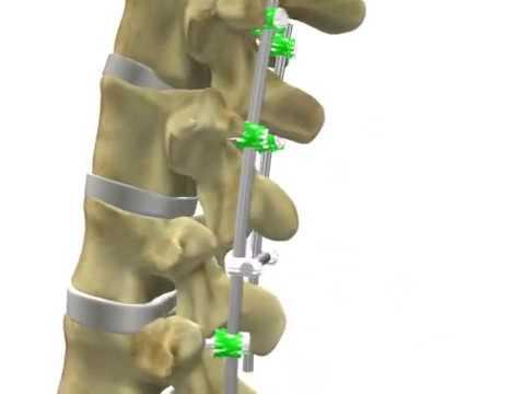 Medicina - Implante Vertebras L1-L4 - YouTube