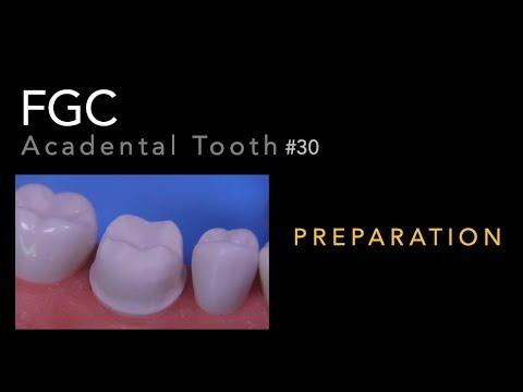 Download FGC Preparation - #30 Acadental