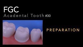 FGC Preparation - #30 Acadental