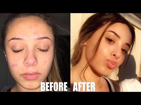 HOW I GOT RID OF ACNE & CURRENT SKIN CARE ROUTINE