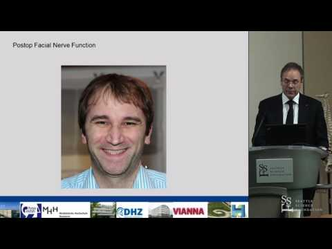 Acoustic Neuroma: Decision making, Surgical Therapy & Results - T. Lenarz