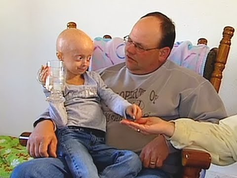 Progeria clinical trial at Boston Children's Hospital
