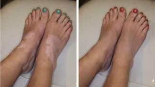 Vitiligo Treatment 2018 new method