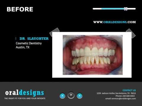 Oral Designs Dental Lab Welcome Tour Informational