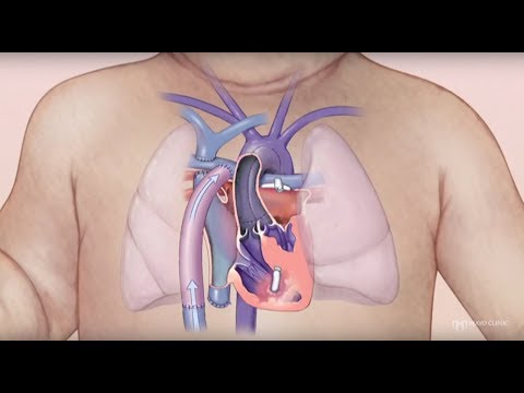 Congenital Heart Disease – Hypoplastic Left Heart Syndrome