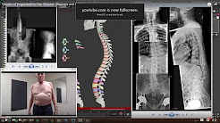 hqdefault - Degenerative Bone Disease Back Pain