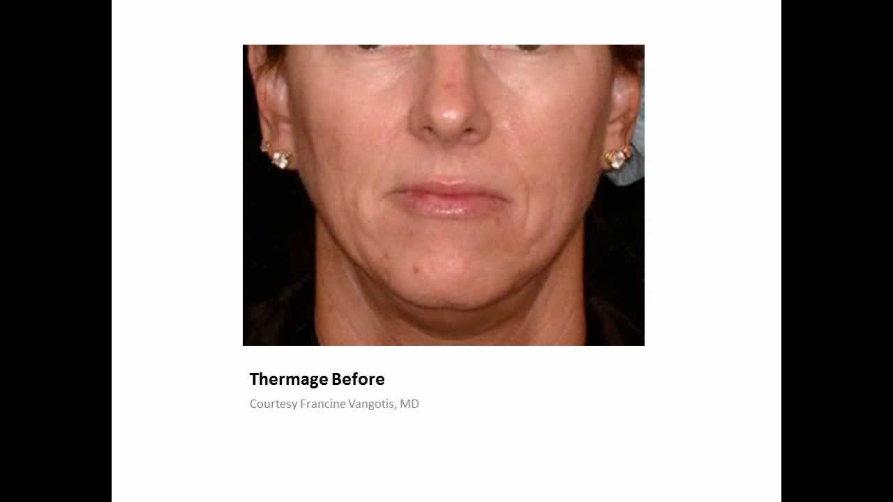 Thermage Before and Afters - Thermage offered at La Jolla Cosmetic Laser  Clinic