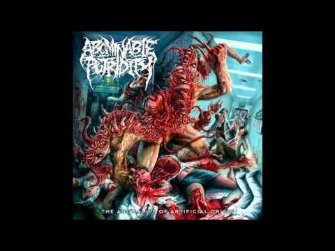 Abominable Putridity - The Anomalies Of Artificial Origin (Remixed & Remastered) (2015) (FULL ALBUM)