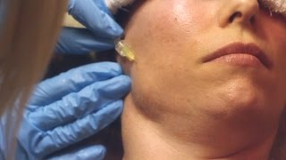 This Is Beauty | Carboxy-Therapy | For Circles Around Eyes and Skin Rejuvenation