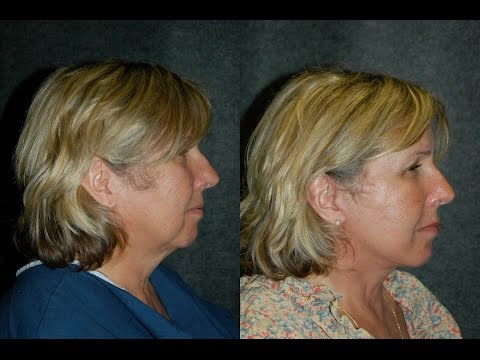 local-anesthesia-lower-facelift-on-61-year-old-nurse-|-dr-jacono-reviews