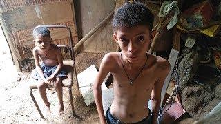 El drama de la severa desnutrición infantil en Venezuela
