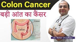 Rectal cancer ke lakshan
