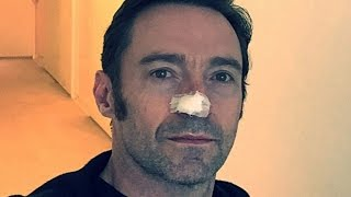 Hugh Jackman Diagnosed With Skin Cancer For The 6th Time