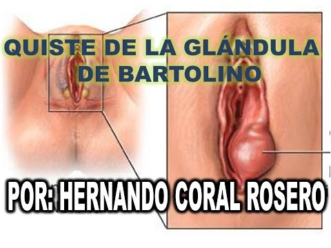 GLANDULA DE BARTOLINO DOWNLOAD