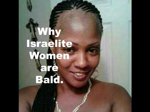 Why Black Women are bald with no edges