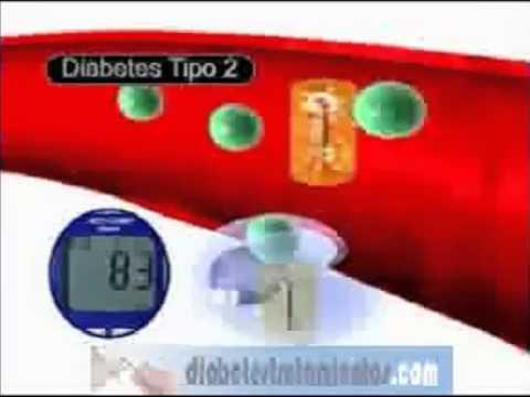 Que es la diabetes mellitus? - Diferencias entre la diabetes tipo 1 y diabetes tipo 2