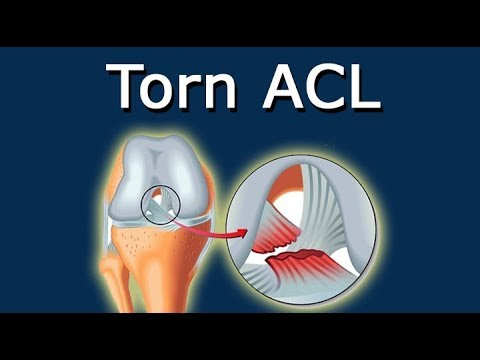 Torn ACL - Definition And Picture