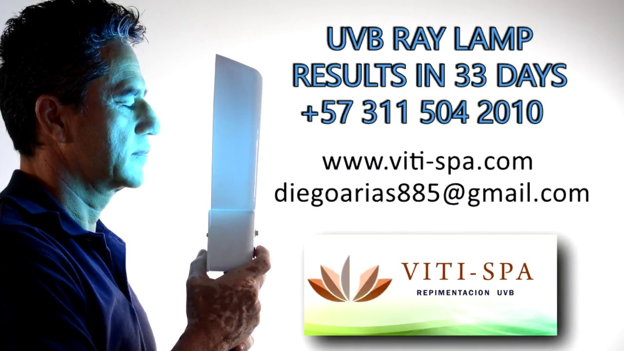 uvb ray lamp results in 33 days - YouTube