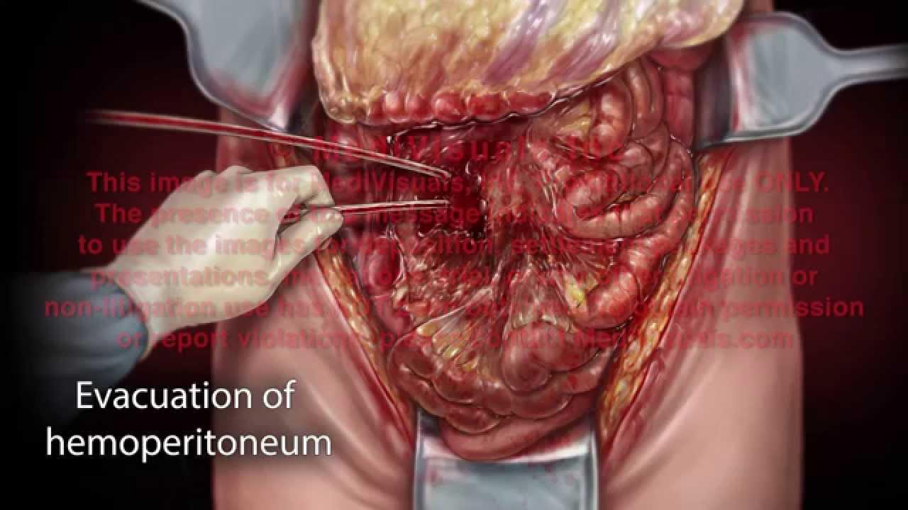 laparotomy small bowel resection youtube