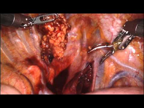 Robotic Xi Right Upper Lobectomy