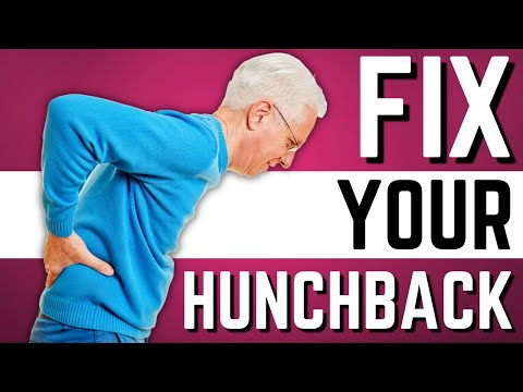 Top 10 Exercises to Stop Hunchback, Kyphosis, Forward Head Posture
