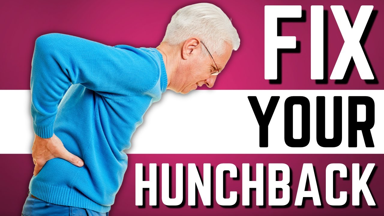 Top 10 Exercises to Stop Hunchback, Kyphosis, Forward Head Posture