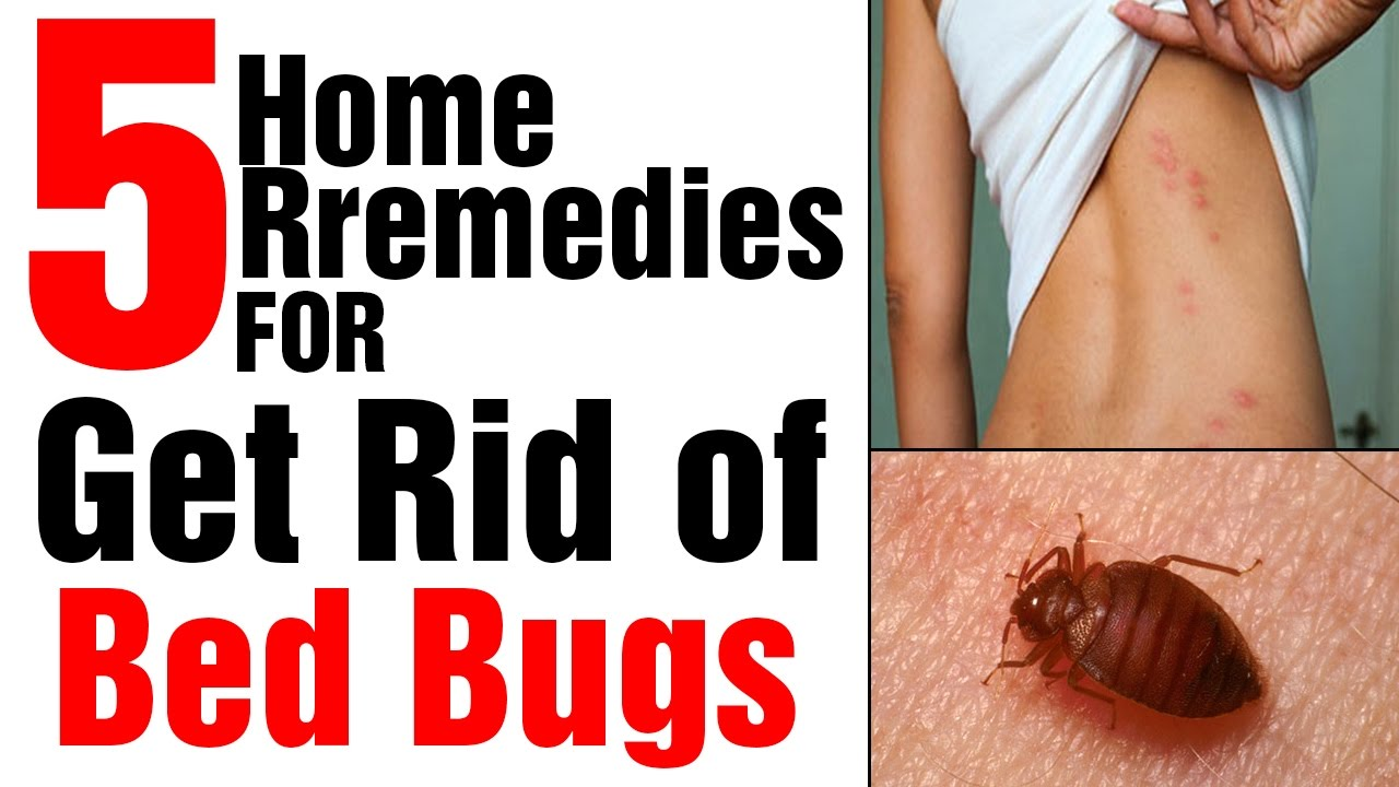 5 Effective Home Remedies to Get Rid of Bed Bugs - YouTube
