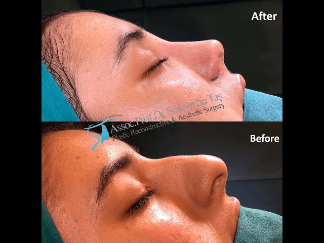 Rhinoplasty Surgery Before and After Transformation