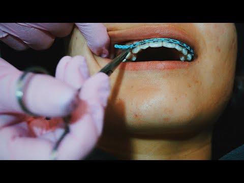 ortho app - braces update