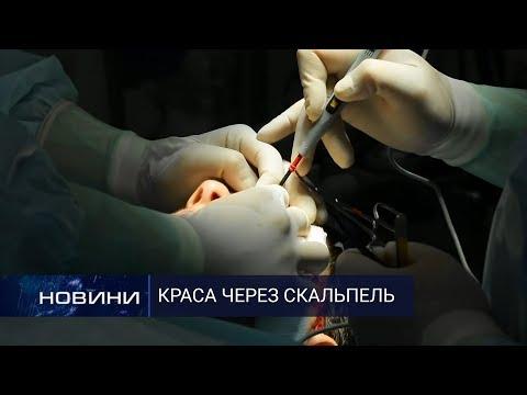Пластична хірургія: операції, які роблять людей щасливими. Перший Подільський 25.02.2020