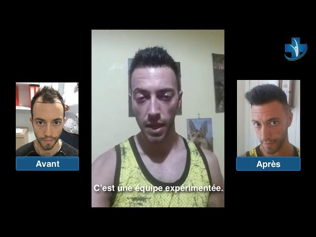 Greffe de cheveux Turquie - Avant - Après - Dr. Oyku Celen / Skin Health Turkey