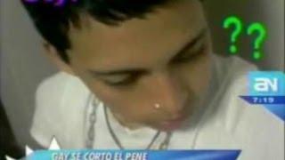 Joven peruano se corta el pene porque