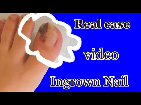Ingrown Nail   Surgical Treatment   A Real Surgeon Performs