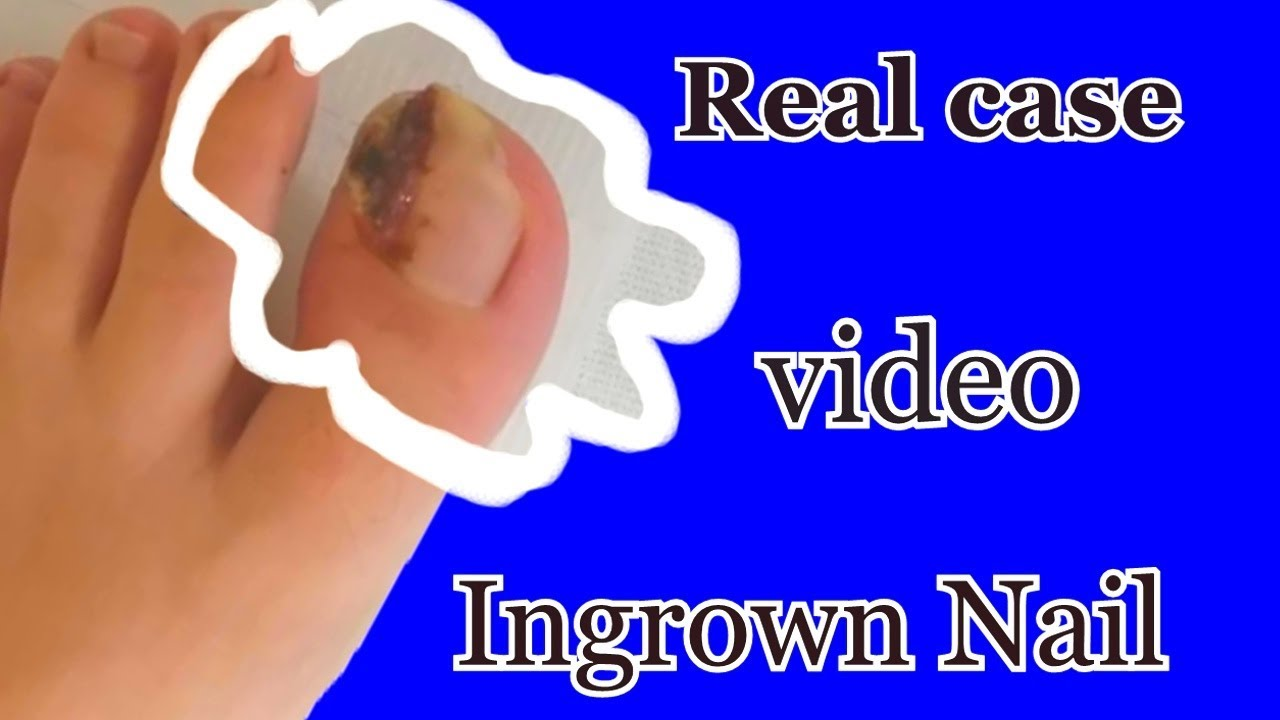 Ingrown Nail - Surgical Treatment  (Real case  video with sound)