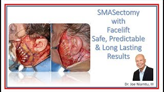 SMASectomy with Facelift: Safe, Predictable, Long Lasting