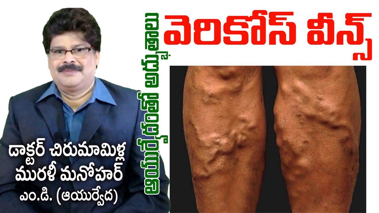 varicose treatment in ayurveda