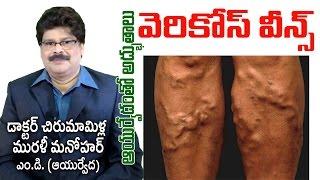 Varicose Veins | Ayurvedic Treatment | వేరికోస్ వీన్స్ | Dr. Murali Manohar Chirumamilla, M.D. (Ay)