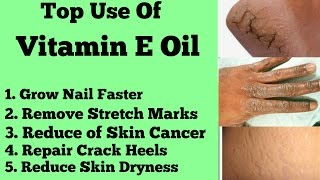 Top 5 Uses of Vitamin E Capsule For Body Care || Body Care Tips || Benefits of Vitamin E Capsule