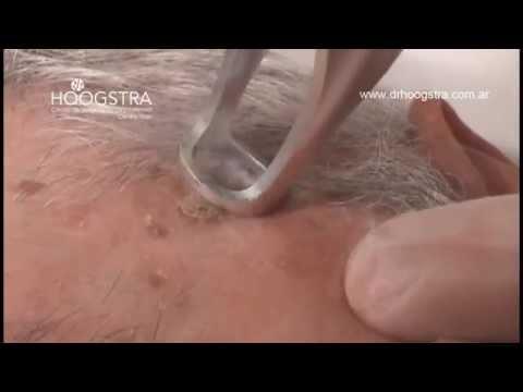 Queratosis Actínica, Seborreica - Tratamiento con Láser Lotus II (14030)