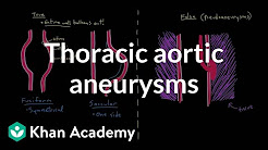 hqdefault - Thoracic Aortic Aneurysm And Back Pain