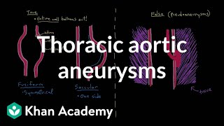 Thoracic aortic aneurysms