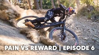 MTB INJURIES: The head | Pain vs Reward E6