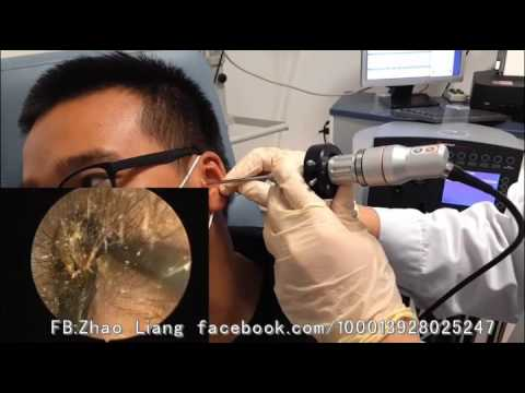 Endoscopic earwax removal by Dr. Zhao EP.1 (a young man)