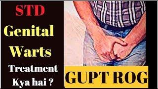 गुप्त रोग इलाज Genital Warts गुप्तंगी मस्से ilaj Treatment by Dr Rupal #STD Veneral Disease (2019)