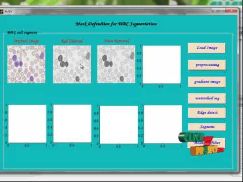 Final Year Projects | A novel method of white blood cell segmentation