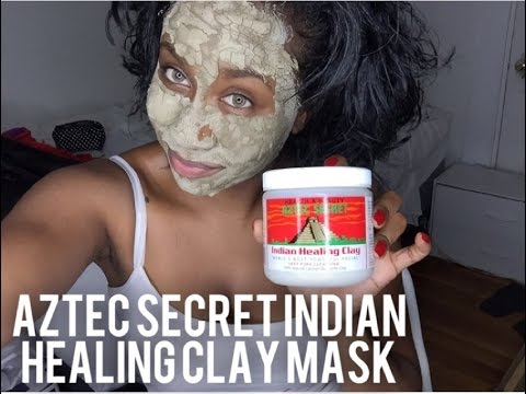 Aztec Secret Indian Healing Mask Review (pimples gone in 30 minutes)