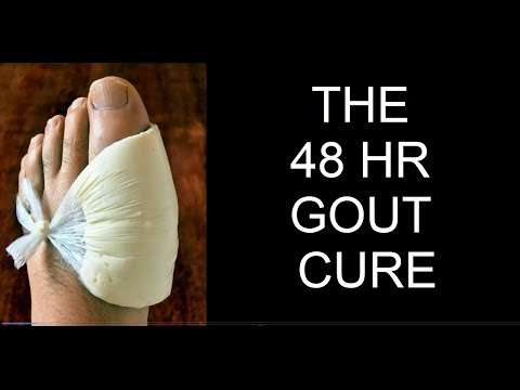 gout therapy quotes high uric acid urine how to reduce uric acid levels by yoga